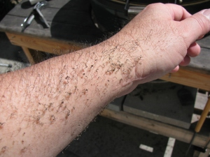IMG_8395 - kh6wz - BGE singed arm hair